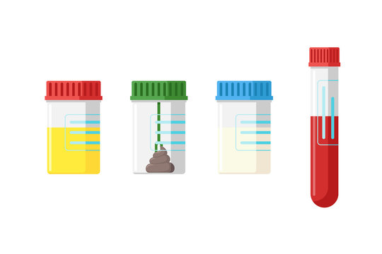 Medical analysis laboratory test urine stool feces sperm semen and blood in plastic jars with colored lids. Flat vector illustration