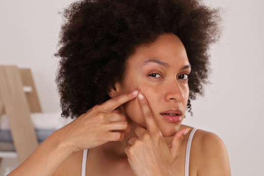 Young woman squeezing pimple on her cheek, skin care concept