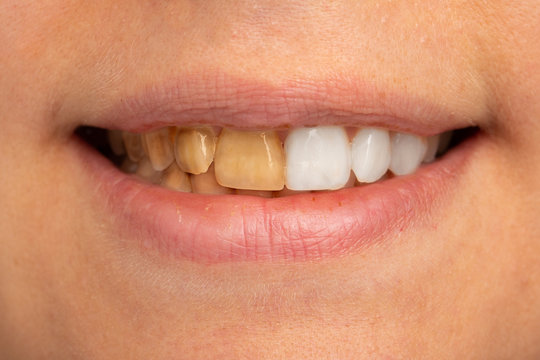 A close up view on the teeth of a young adult, half of the teeth have been whitened and half have yellow staining. Cosmetic dentistry concept.