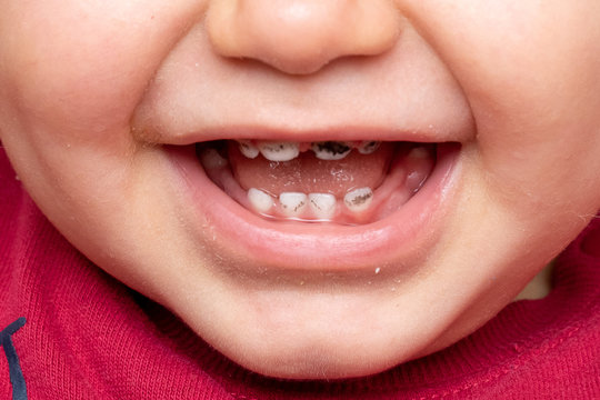 A closeup view on the mouth of a smiling toddler, open lips reveal black spotted milk teeth. A common symptom of fluorosis and tooth decay in children.