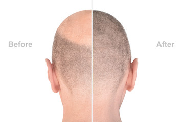 Back view of male head before and after hair extensions Wall mural