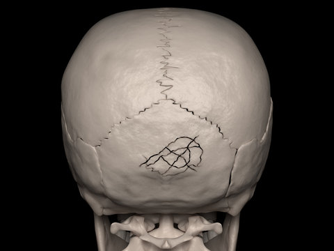 Comminuted Cranial Vault fracture of the Occipital bone (cranial fracture)