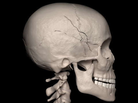 Contiguous Cranial Vault fracture of the Sphenoid-, Frontal-and Parietal bone (cranial fracture)