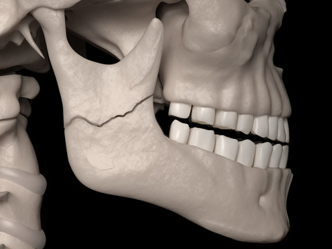 Simple fracture of the Ramus (mandibular fracture)