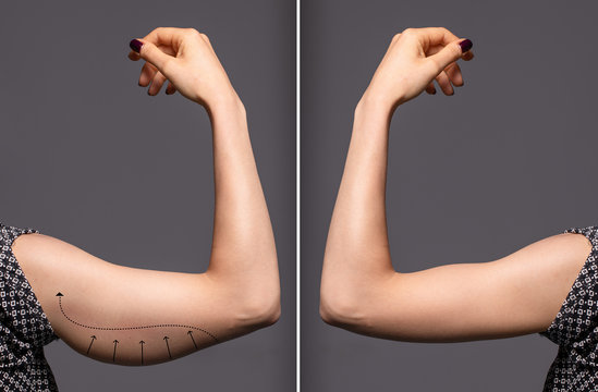 Woman arms with bat wings, comparison between before and after brachioplasty surgery