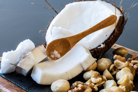 A close up of ketogenic food: coconut and coconut butter, walnuts and macadamia nuts