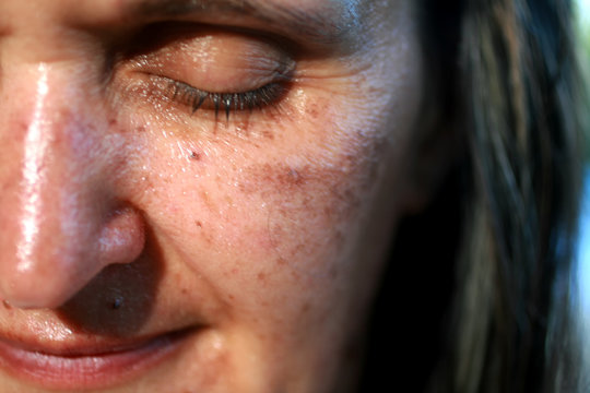 Pigmented spots on the face. Pigmentation on cheeks