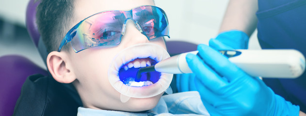 A boy with goggles in the dental chair. Mouth directed lightpolymerization lamp with blue light for sustainable fillings.