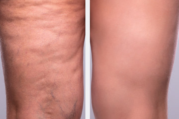 Person's Leg Before And After Cellulite Treatment