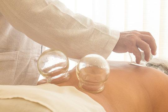 Acupunture cupping. Chinese Medicine Procedure