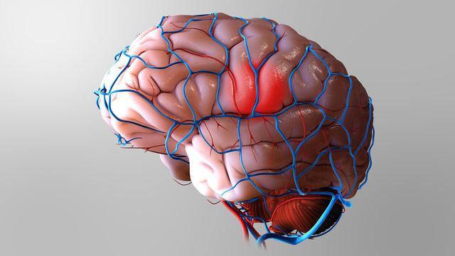 3D Brain Stroke Illustration