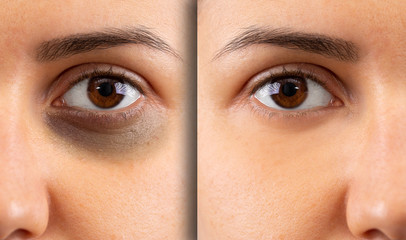 A close up before and after shot on a young woman with a black and bruised eye. Image on the right shows healing of the delicate skin beneath the eye. Domestic violence concept.