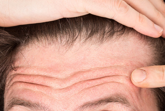 A closeup view on the forehead of a thirty something Caucasian man. Pointing towards open pores and skin imperfections.