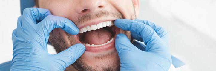 Man having teeth examined at dentists