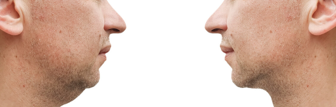 male double chin before and after correction