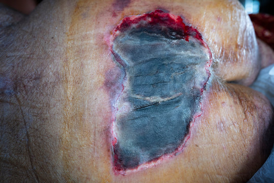 Close up infected bed sore wound