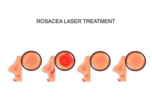 laser treatment of rosacea