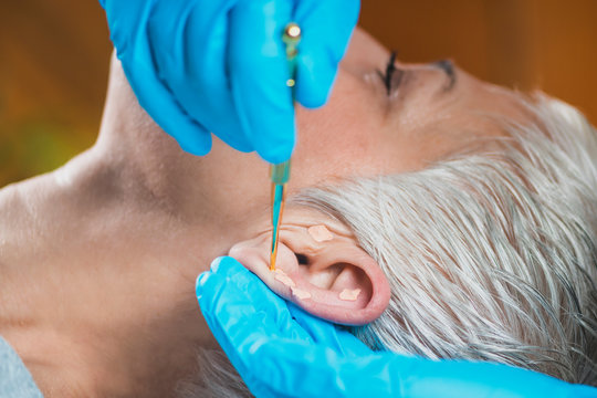 Ear Acupuncture Point Therapy