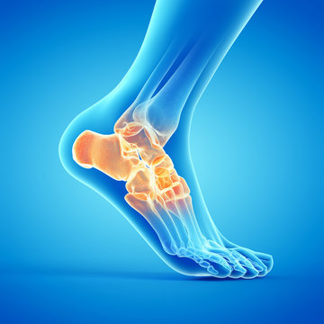 3d rendered medically accurate illustration of a painful ankle