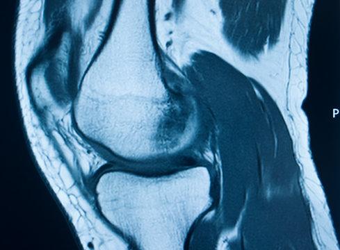 Knee injury mri mcl tear