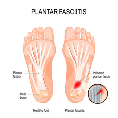 Plantar fasciitis. disorder of the connective tissue which supports the arch of the foot