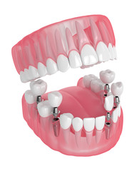 3d render of jaw with dental implants