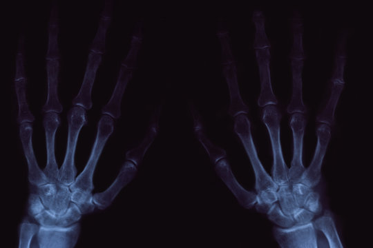 X-ray of hands with arthritis on black background.