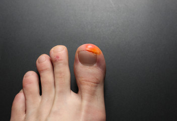 Callus blisters on man feet. Painful wounds. Uncomfortable shoes problems. Footballer's legs.