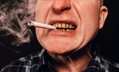 Cigarette in the man's mouth. Plaque teeth cavities and paradontosis. Smoking causes dental decay problems and bad smile. Dentist treatment concept. Harmful habit.