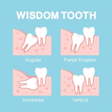 Abnormal eruption of wisdom tooth. Dental problems