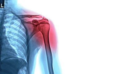 X-ray image of shoulder pain, shoulder ligament tendinitis, shoulder muscle strain.