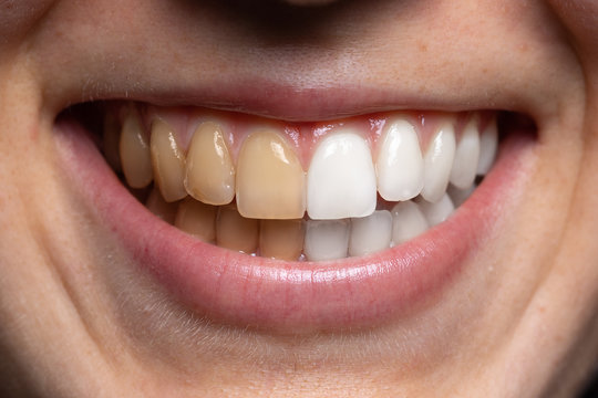Before and after view of tooth whitening. A young Caucasian girl smiles wide and is seen close up. Showing the results of whiter teeth after a dentistry procedure.