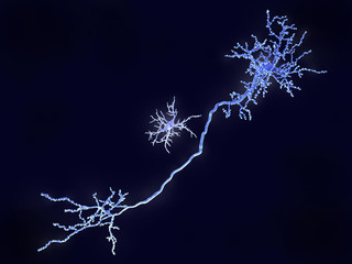 Microglia cell and pyramidal neuron