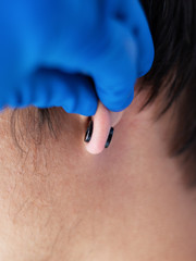 piercing and stretching the ears with medical  blue gloves. increase the diameter of the ear tunnels