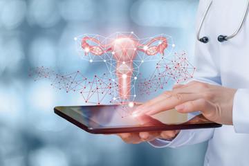 Obraz Medic shows the uterus of a female . - fototapety do salonu