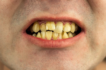 crooked, dirty, smoker's teeth with a wrong bite, close-up