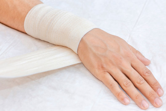 Bandaging limb of patient. Broken wrist with bandage in hospital office. Sprain, stress fracture, trauma in hand. First aid.