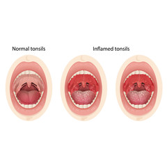 Normal and inflamed tonsils. Illustration of a throat bacterial and viral infection.