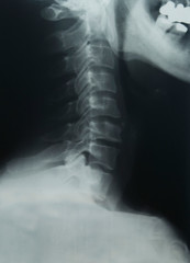 x ray of the neck