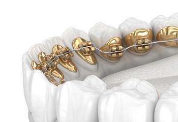 Lingual braces system. 3D illustration concept of golden braces