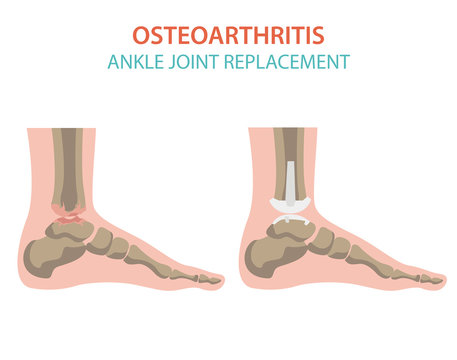 Arthritis, osteoarthritis medical infographic design. Joint replacement, implantant.