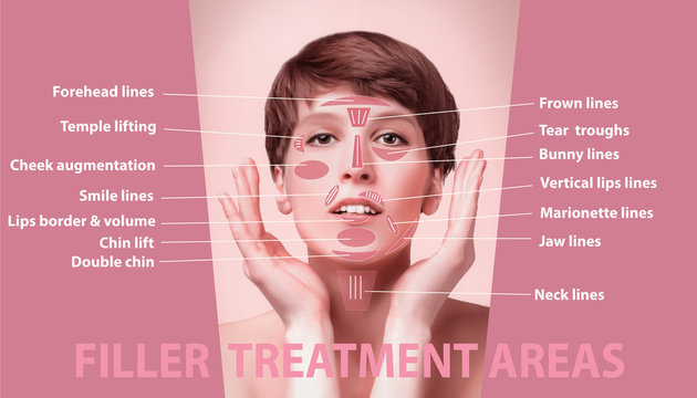 The areas for rejuvenation cosmetological injections