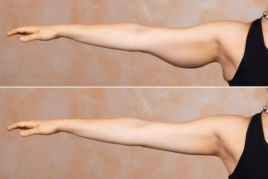 A before and after view of a young Caucasian lady who had a brachioplasty. Popular arm lift surgery which removes the sagging fat layer from the upper arm.