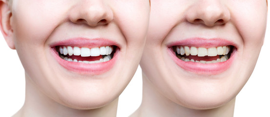 Teeth of young woman before and after whitening and buildup.