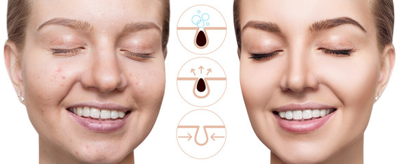 Graphically shows how to pollute and clean the pores on face.