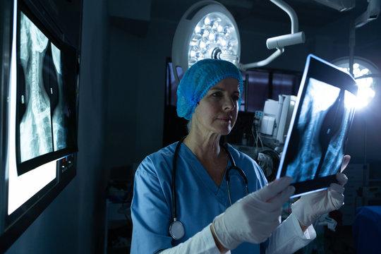 Female surgeon examining x-ray in operating room of hospital