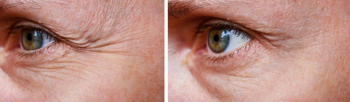 Procedure for the rejuvenation of wrinkles around the eyes, crow's feet,  before and after effect