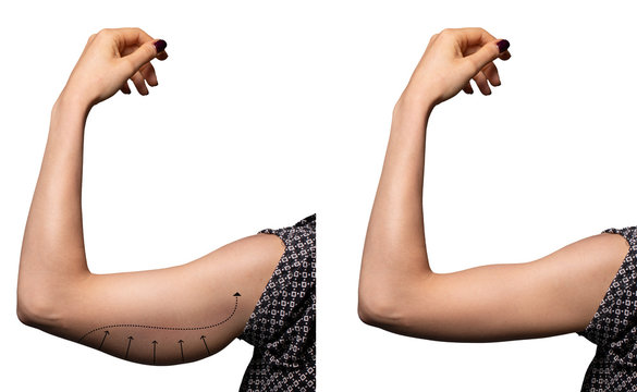 Arrows show the before and after results of a successful brachioplasty, a surgical procedure to remove excess fat in the upper arms. Isolated on white backdrop.