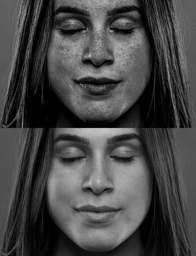 A split screen view showing the before and after effects of sun damage to the beautiful face of a young Caucasian millennial girl. Dangers of sun exposure.