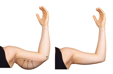 A Caucasian lady holds her arm in the air, isolated against a white background. Arrows show the saggy fat (bingo wing) before surgery. Image on the right shows results after a lift.